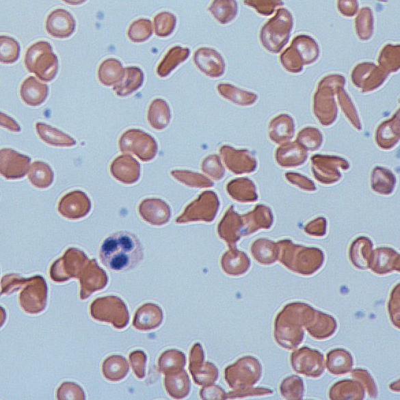 """Sickle cells"" by Dr Graham Beards - Own work. Licensed under CC BY-SA 3.0 via Commons - https://commons.wikimedia.org/wiki/File:Sickle_cells.jpg#/media/File:Sickle_cells.jpg"